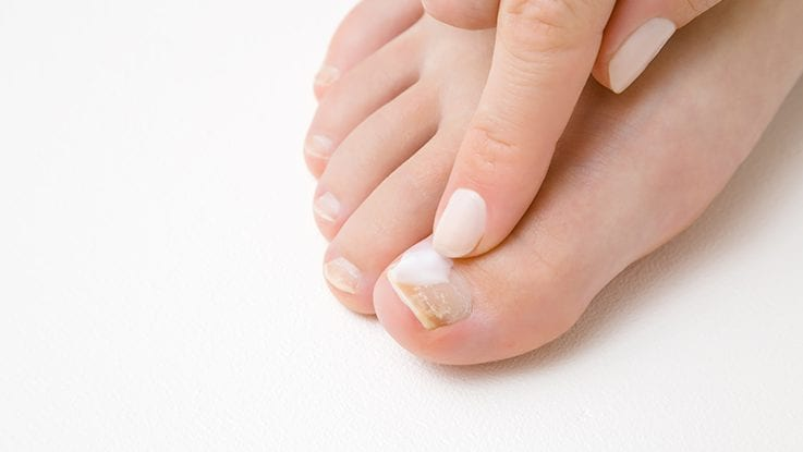 How To Eliminate Toenail Fungus?