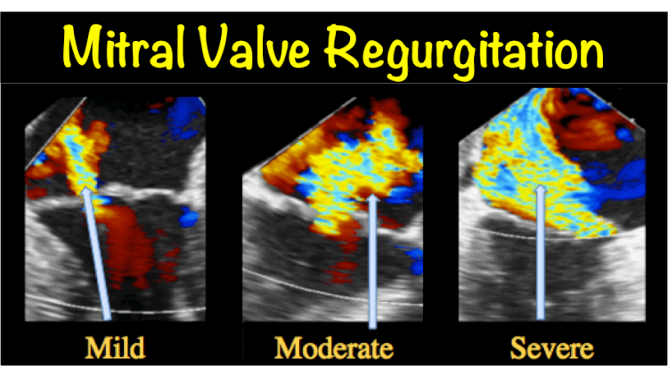 What Is Needed For Mitral Regurgitation?